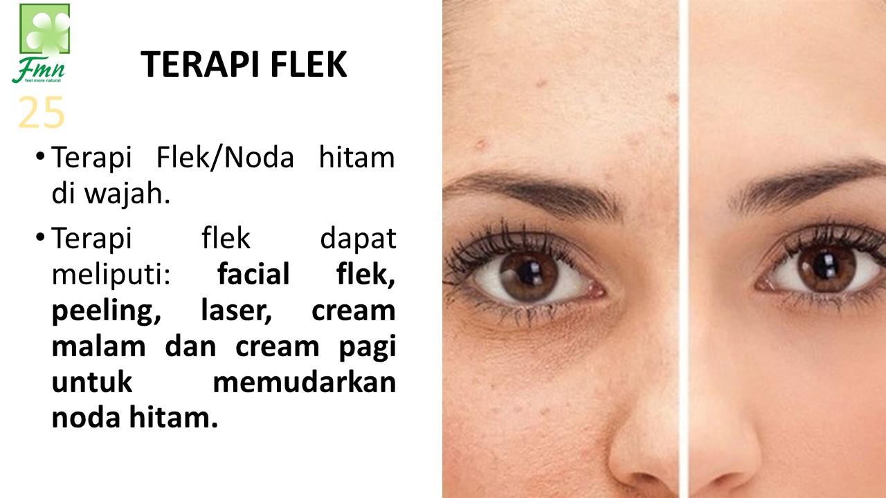 Terapi Flek